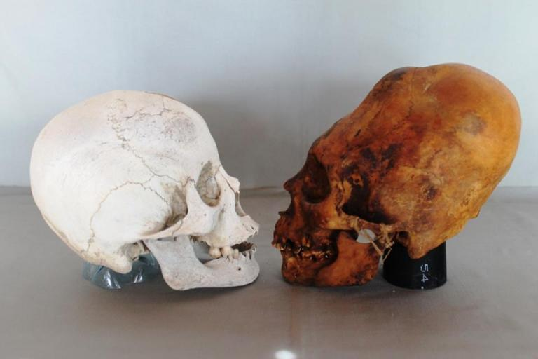 Left normal inca skull - Right Elongated paracas skull