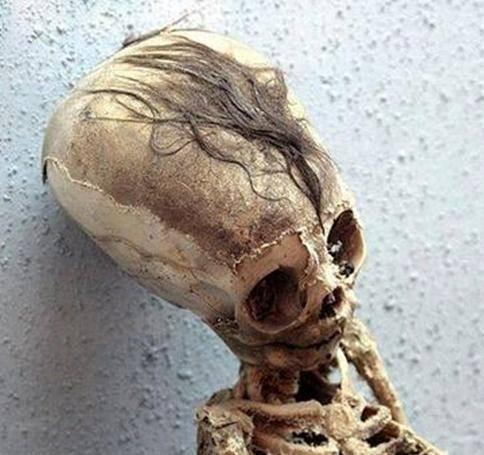 ELONGATED SKULL-CHILD