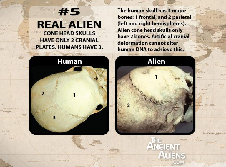 elongated skulls are not human skulls
