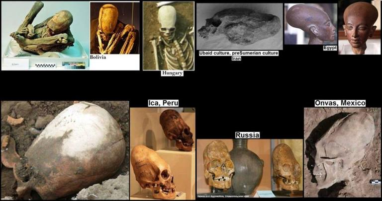 ELONGATED SKULLS AROUND THE WORLD